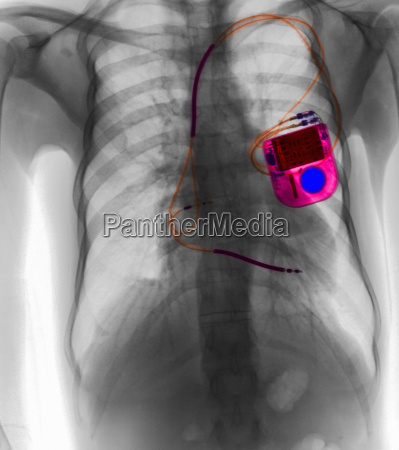chest x ray showing pacemaker