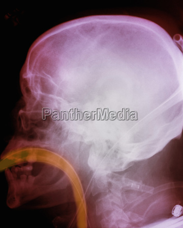 x ray of skull showing intubation