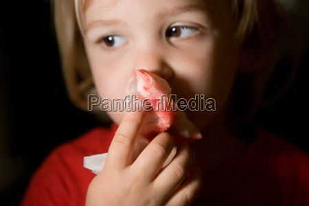 boy holding blood stained tissue paper