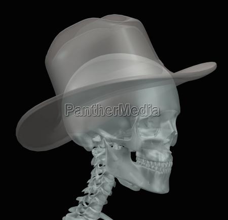 illustration of a human skull wearing