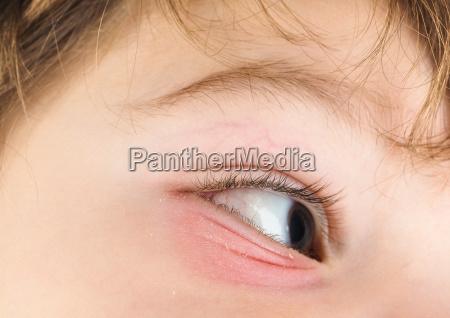braun braeunlich bruenett auge oculus ophthalmos