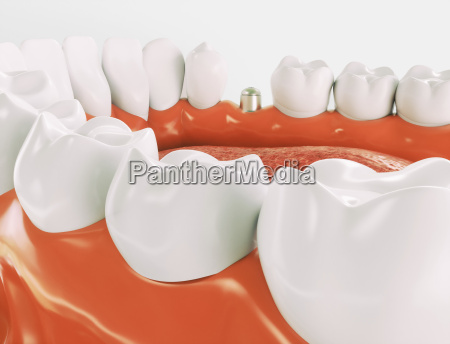 dental implant series 3 of
