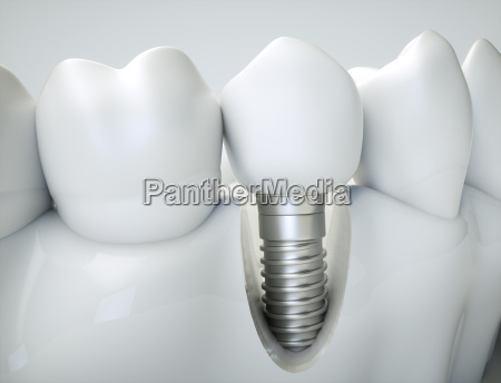 dental implant 3d rendering