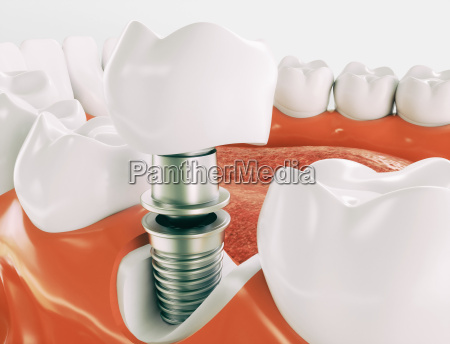 dental implant series 2 of