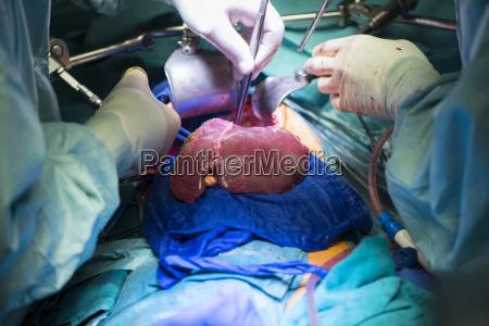 chirurgen transplantieren eine leber