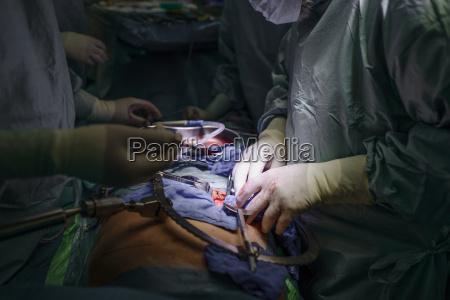 chirurgen die eine niere verpflanzen