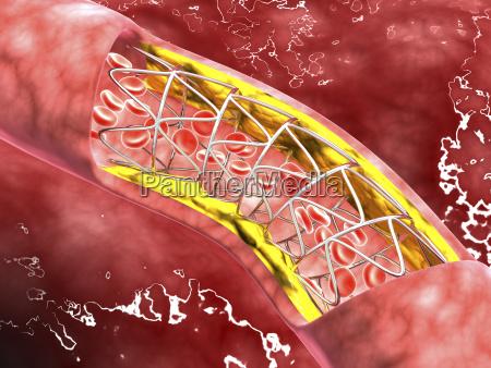 microscopic view of an artery cross