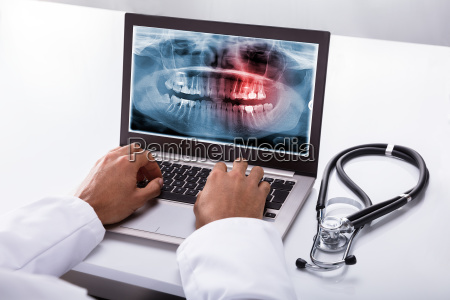 dentist typing on laptop with dental