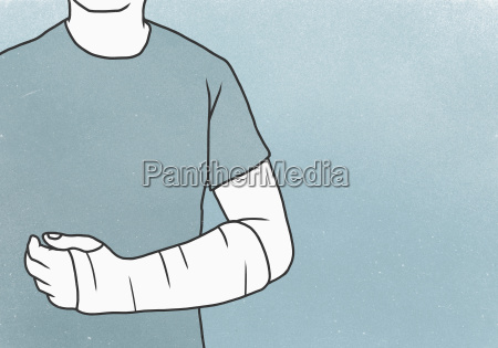midsection of man with fractured hand