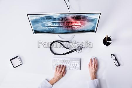 die hand des zahnarztes die zaehne