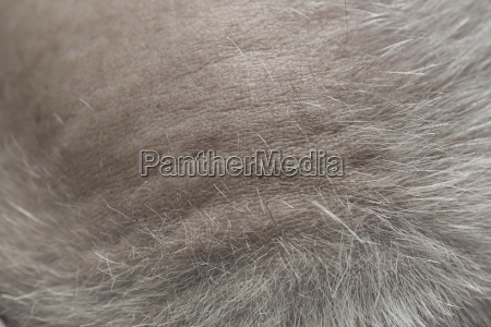 overhead view of mans scalp