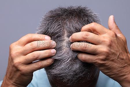 dandruff on mans hair