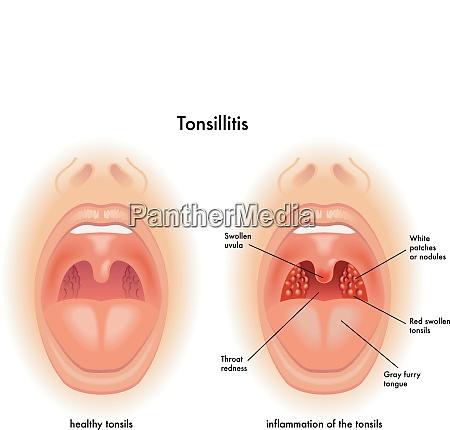 medizinische illustration der symptome der mandelentzuendung