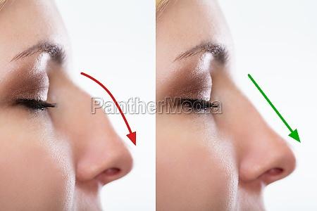 frau nase vor und nach plastischer