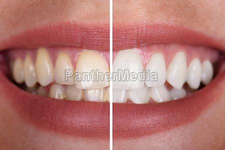 frau teeth vor und nach der