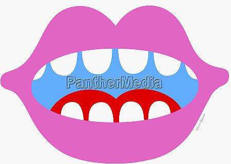 offener mund und zaehne