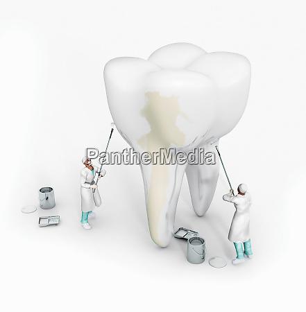 zahnaerzte die grossen zahn mit weisser