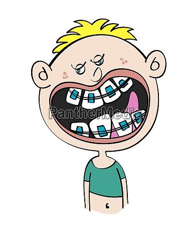 lustige weisse junge mit zahnspangen cartoon