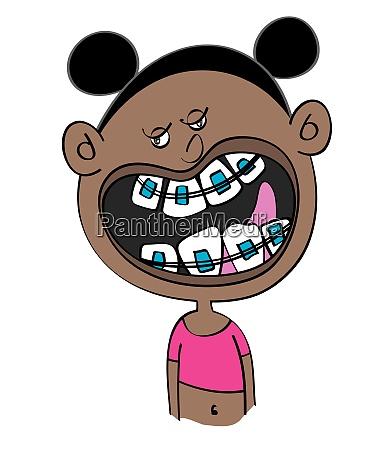 lustige schwarze maedchen mit zahnspangen cartoon