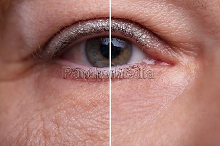 traenensaecke vor und nach der kosmetischen