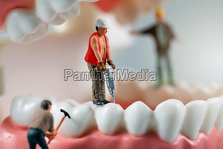 dental treatment concept miniature figurines