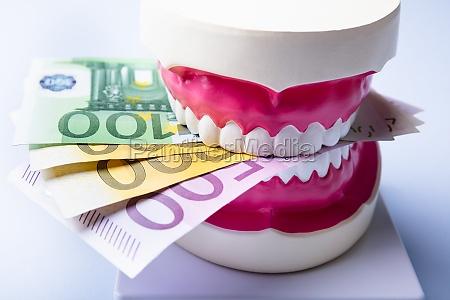 zahn kosten geld implantat zahnarzt zahn