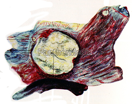 tuberkulose der blase vintage gravur