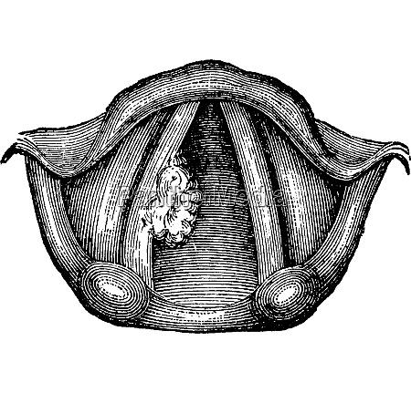 einsames papilloma des larynx vintage gravur