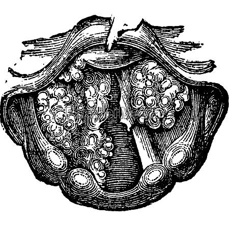 mehrere papilloma der larynx vintage gravur