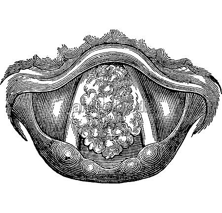 myxom des larynx vintage gravur