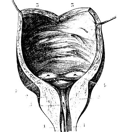 prostatische hypertrophie und nachfolgende blasenwaende vintage