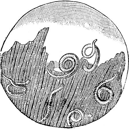 trichinose im fleisch vintage gravur