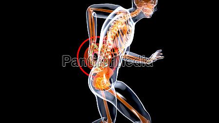 mann mit starken rueckenschmerzen