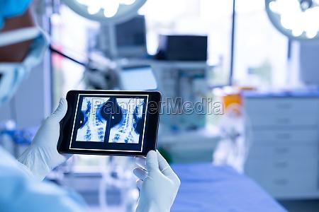 surgeon examining x ray on digital