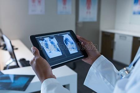 female doctor examining x ray on