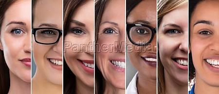 frau gesicht vor und nach kosmetischen