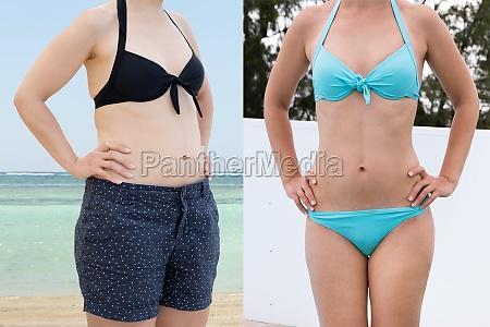 frau vor und nach dem fett