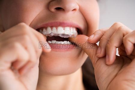clear aligner dental nachtwache