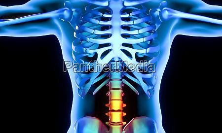 lendenwirbelteil der schmerzen
