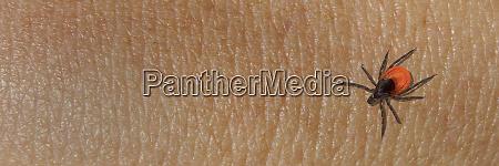 der, angriff, der, enzephalitis, tickt, auf - 28724502
