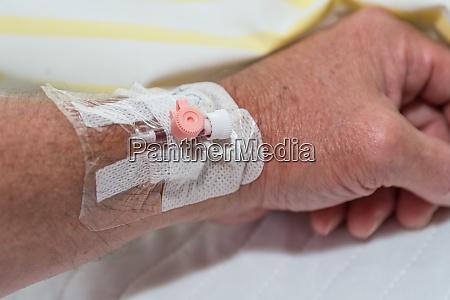venflon kanuele zur infusion