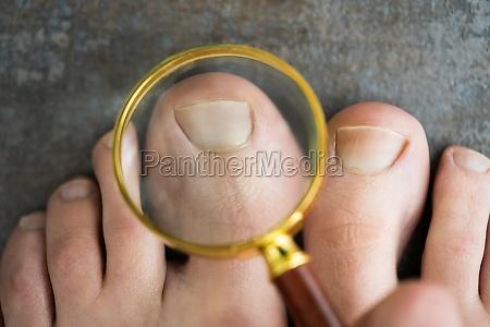 eingewachsenes nagelproblem