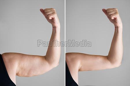 fettleibigkeit cellulite und fettentfernung chirurgie