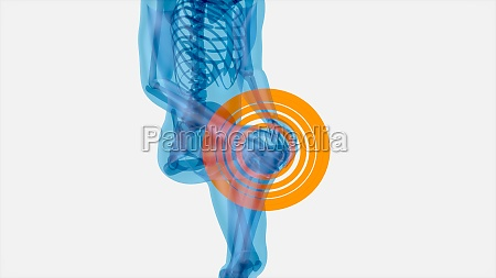 abstract, art, of, knee, pain - 30215540